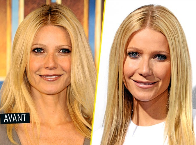 les stars avant apr s leurs transformations gwyneth paltrow chirurgie esth tique. Black Bedroom Furniture Sets. Home Design Ideas